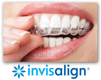 Invisalign - Clear Dental Aligners Honolulu HI